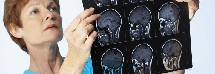 Реактивный менингит, симптомы и последствия реактивного менингита
