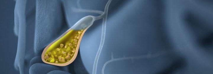 Как лечить калькулезный бурсит