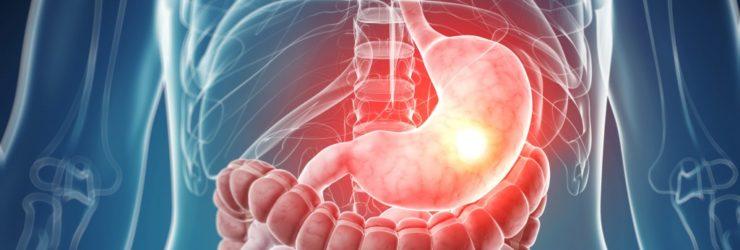 Повышенная кислотность желудка: симптомы, лечение, диета