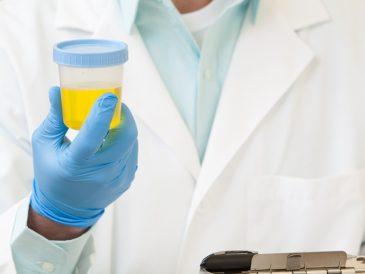 Бактерии в моче: причины, лечение бактерий в моче у ребенка, при беременности