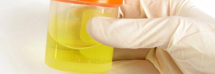 Лейкоциты в моче: норма, повышенные лейкоциты в моче у ребенка