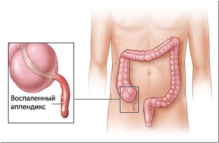 Расположение аппендикса в организме