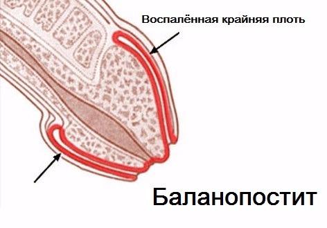 Схема баланопостита