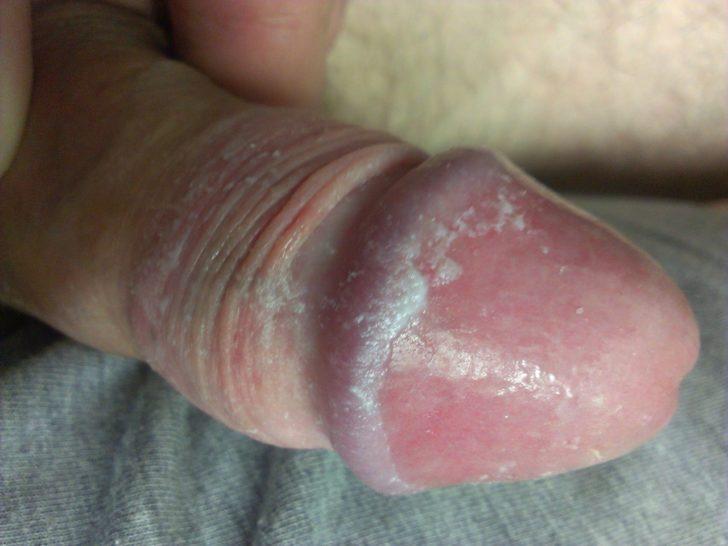грибок на половом члене