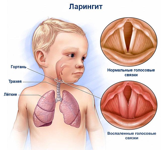 Ларингит у ребёнка