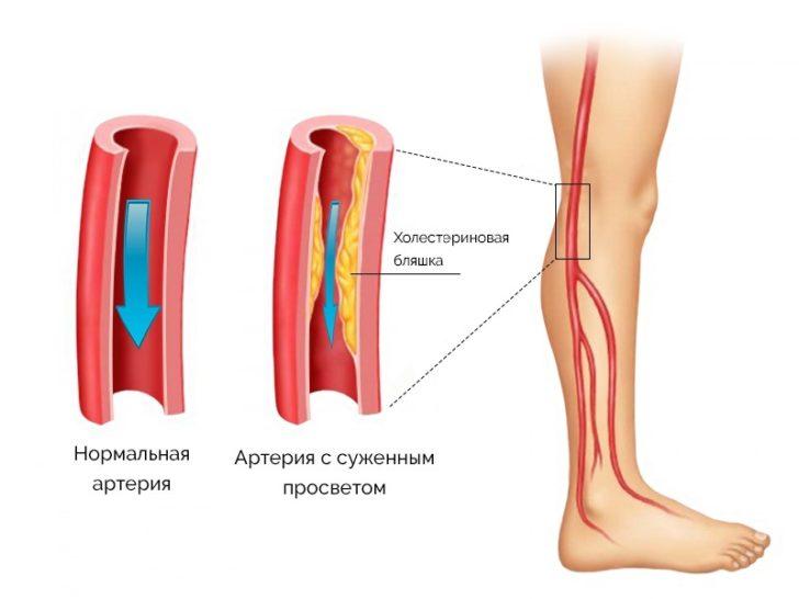 схема диабетической ангиопатии нижних конечностей
