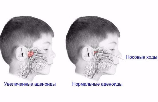 Аденоиды у ребёнка