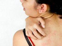 аллергия на цитрусовые у взрослых