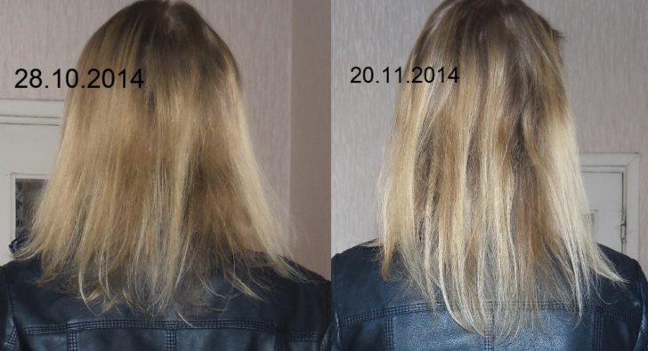 Результат применения Димексида для волос