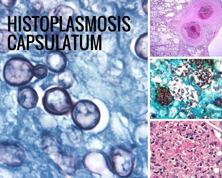 Historlasma capsulatum под микроскопом