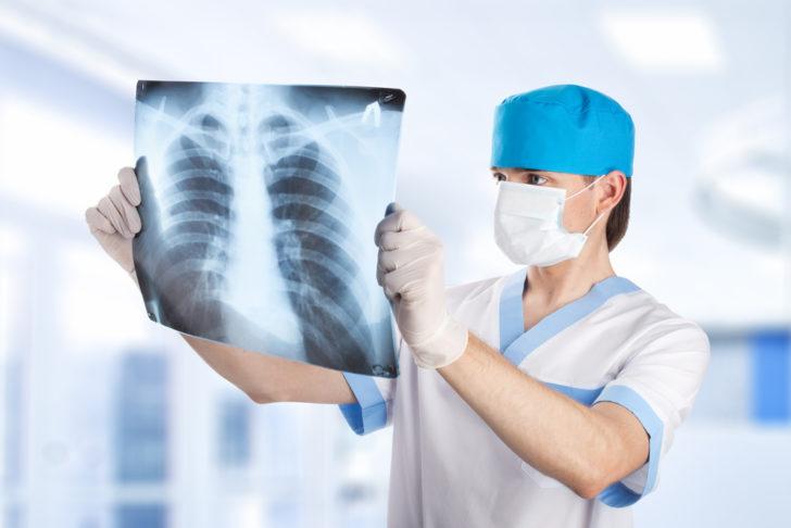 анализ рентгеналёгких