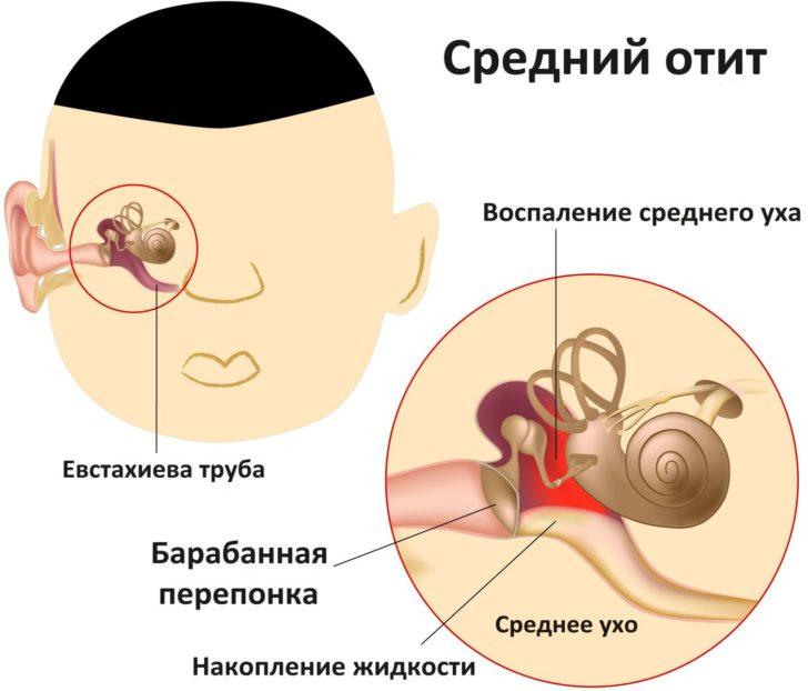 Задержка месячных причины лечение народными средствами