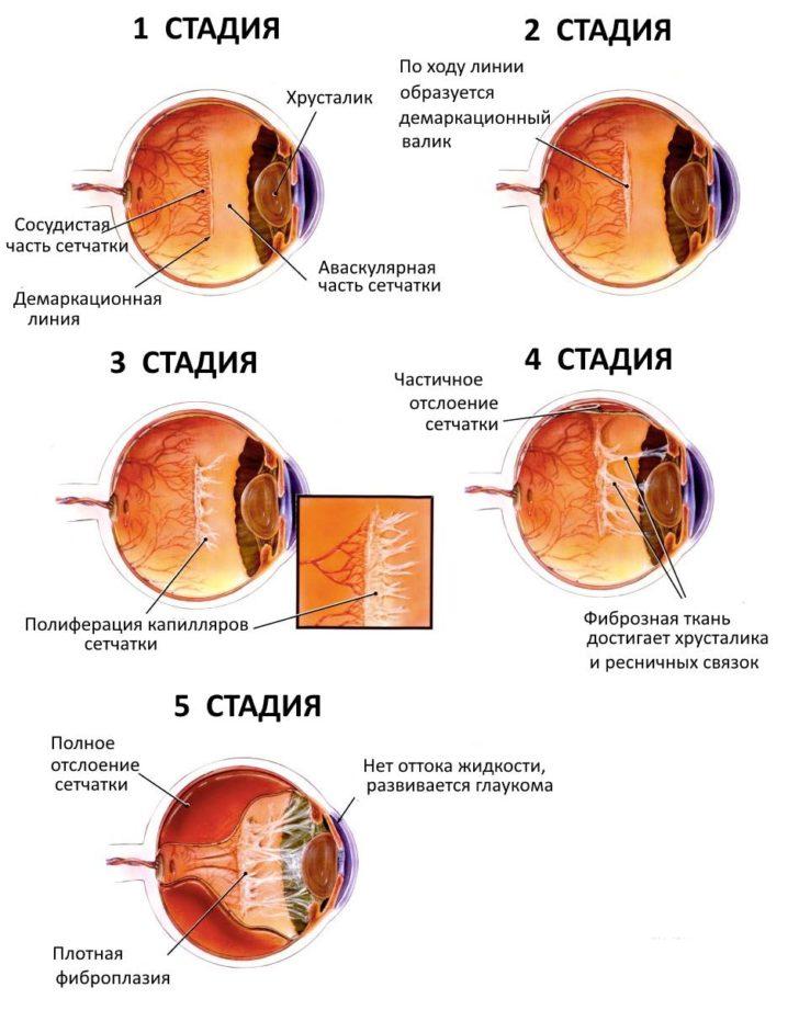 Степениразвития ретинопатии недоношенных