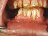 пятна и эрозии на зубах