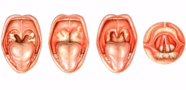 Дифтерия ротоглотки