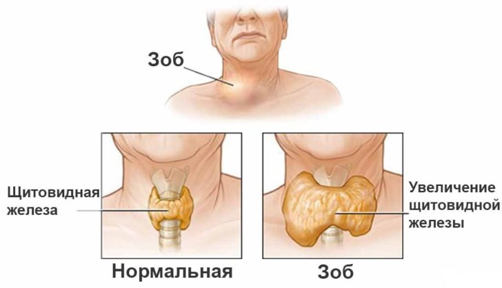 Изображение нормальной щитовидной железы и зоба
