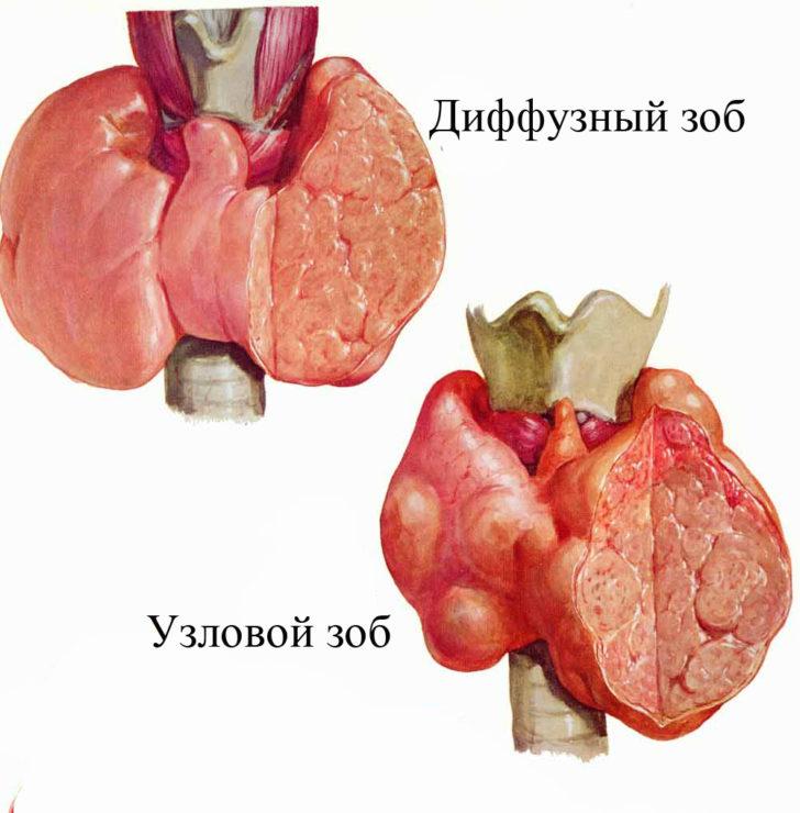 Изображение диффузного и узлового зоба