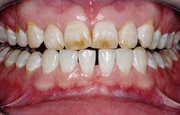 Флюороз верхних зубов