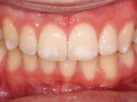 белые точки на зубах