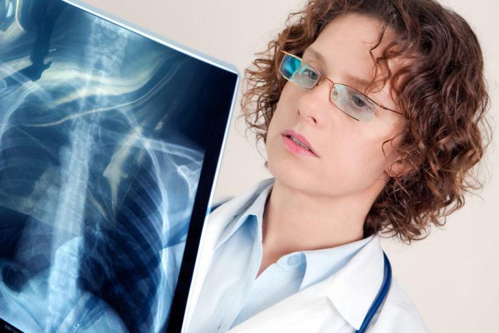 Пневмония на рентгенографическом снимке