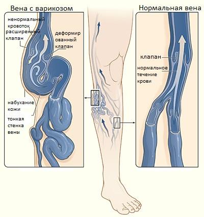 схема посттромбофлебитическогосиндрома