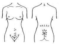 Точки для постановки пиявок при маточных кровотечениях