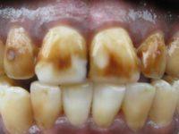 коричневые зубы