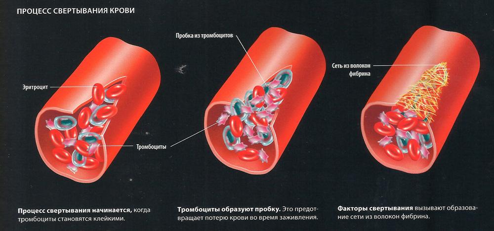 Гирудотерапия при эндометриозе