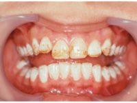 коричневые точки на зубах