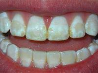белые и жёлтые пятна на зубах