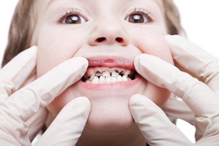 чёрный налёт на зубах у ребёнка