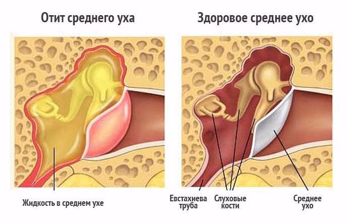 Экссудативный отит
