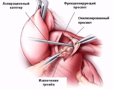 Эмболэктомия