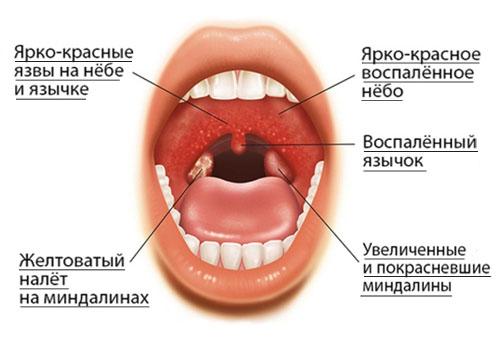 Герпетический тонзиллит