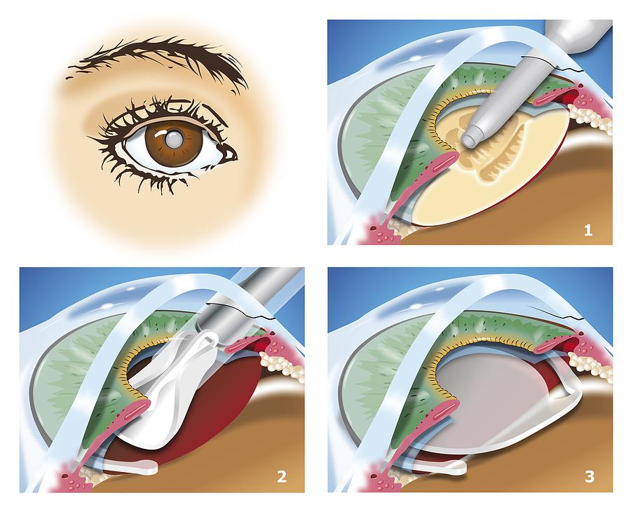 marketing plan laser eye surgery