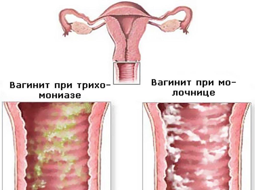Чем вылечить выделения у женщин в домашних условиях 325