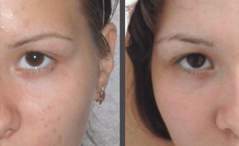 Результат лечения прыщей раствором борной кислоты