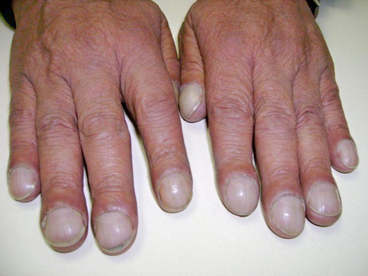 пальцы в форме барабанных палочек