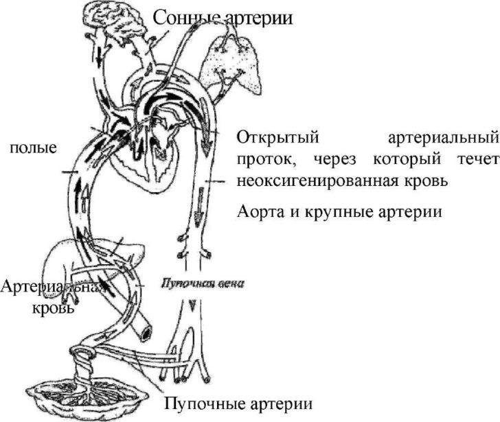схема открытого артериального протока