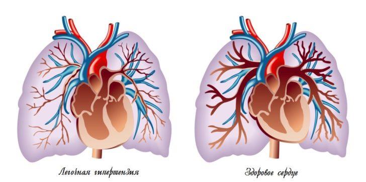 схема лёгочной гипертензии