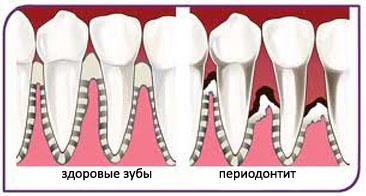 Здоровы зубы и пораженные периодонтитом