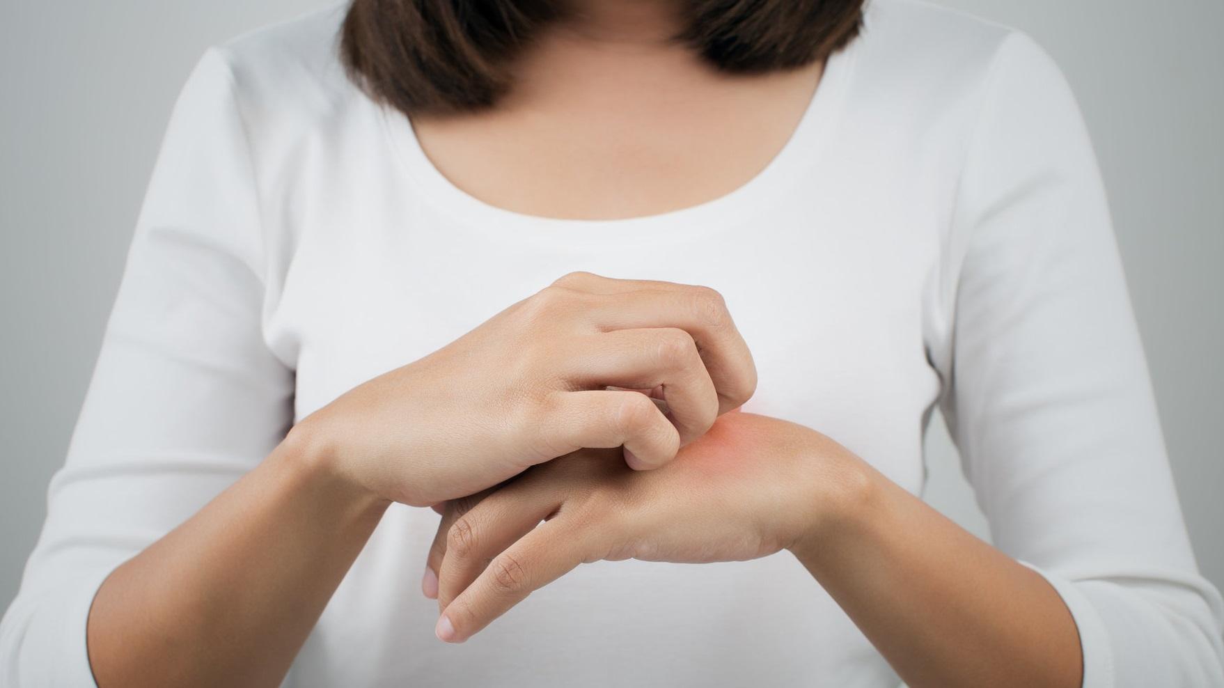 Аллергия на комариные укусы: симптомы и методы лечения