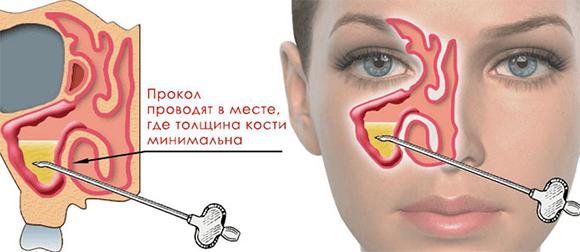 Пункция гайморовой пазухи