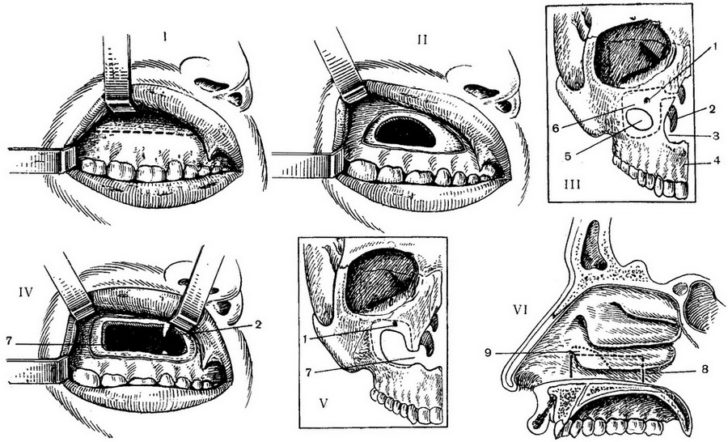 Традиционный способ хирургического лечения хронического гайморита