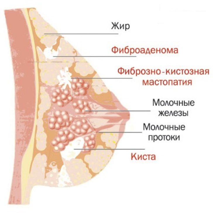Что такое мастопатия молочных желез и как ее лечить