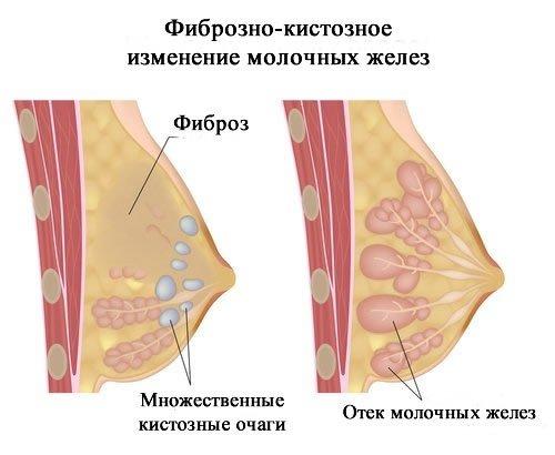 фиброзно кистозная мастопатия и фото
