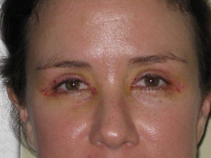 Женщина после операции по устранению птоза
