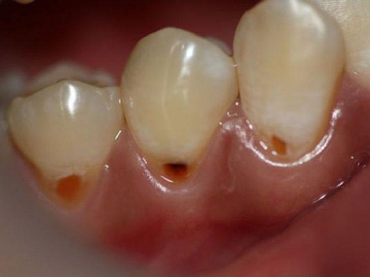Кариес шейки зуба