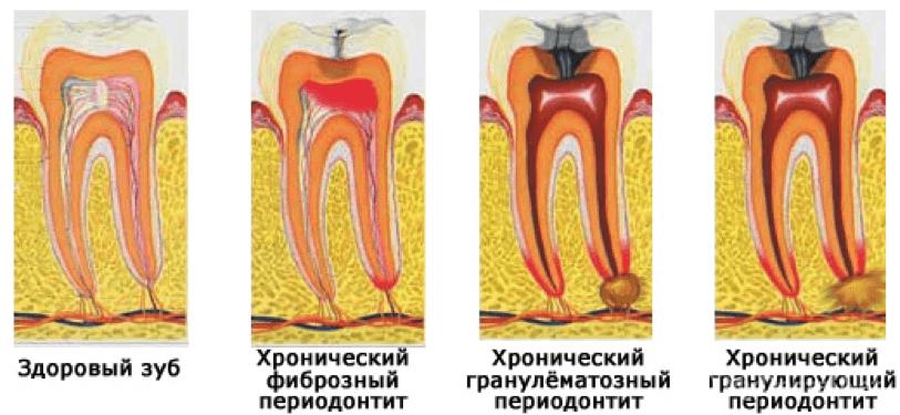 хронический периодонтит в стадии