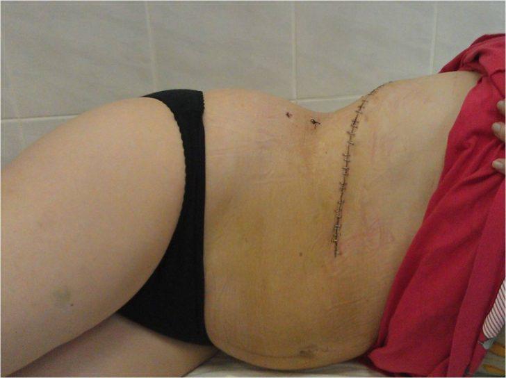 Шов после открытой операции
